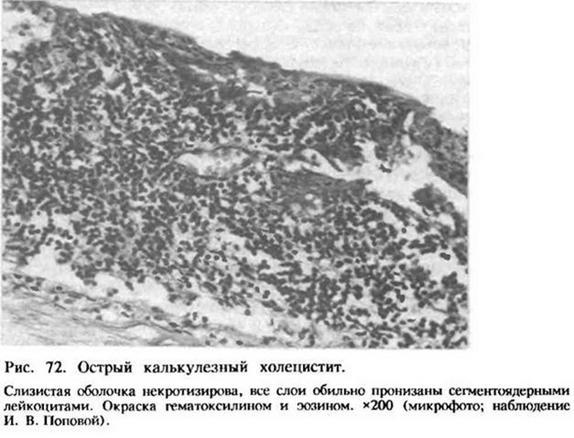 Глава 23. Гострий калькульозний холецистит
