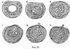 Глава 13 Омани офіційної медицини щодо механізму розвитку грижі диска