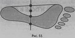 Глава 32 Плоскостопість та біль у спині