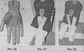 Глава 33 Про оніміння кистей рук