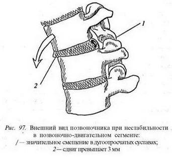 Нестабільність хребетно-рухового сегменту