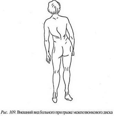 Грижа міжхребцевого диска
